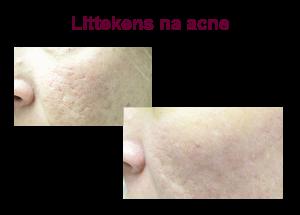 acnelittekens voor en na