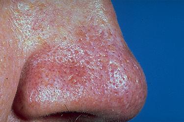 zwelling gezicht verminderen